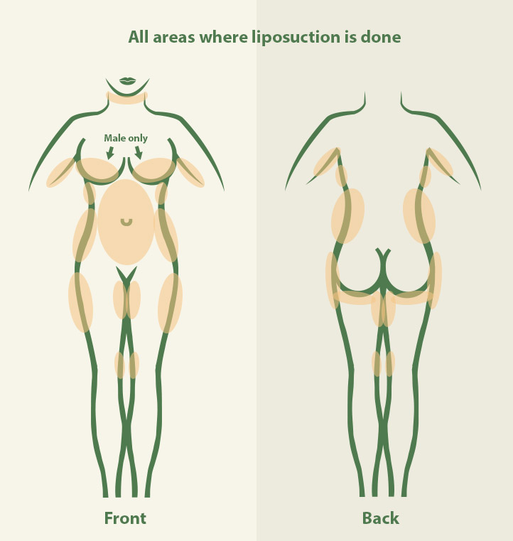 Treatment areas by Dr. Nezami for liposuction in Jacksonville FL